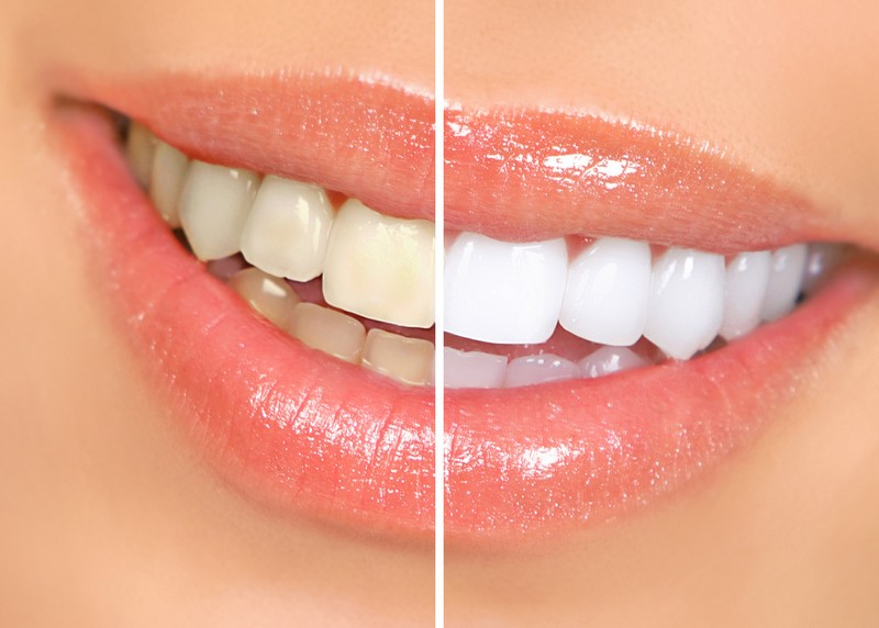teeth whitening services in Walled Lake, MI