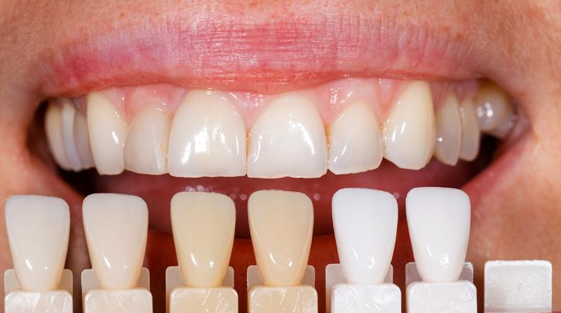 Veneers in Walled Lake, MI